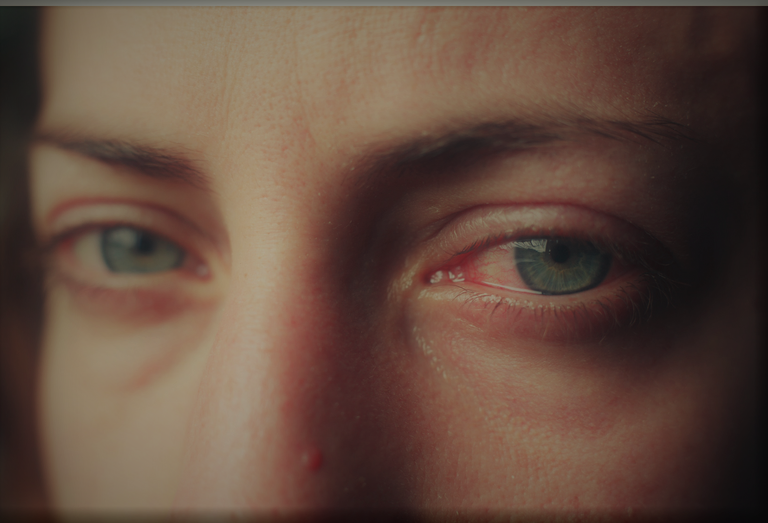 Traumatised Woman Eyes - Edited